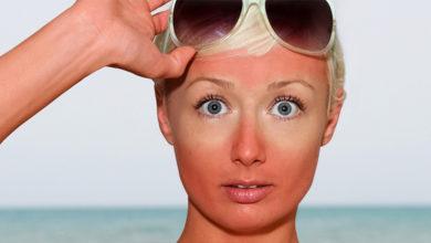 Photo of Как восстановить кожу после палящего солнца
