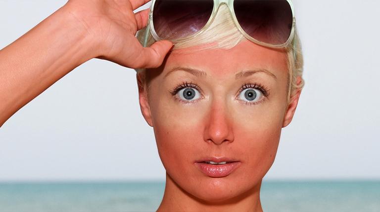 Как восстановить кожу после палящего солнца