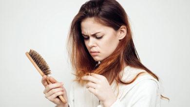 Photo of Что делать, если выпадают волосы?