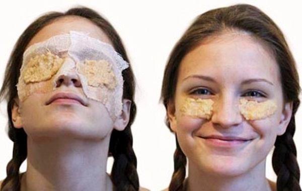 картофельная маска от морщин под глазами