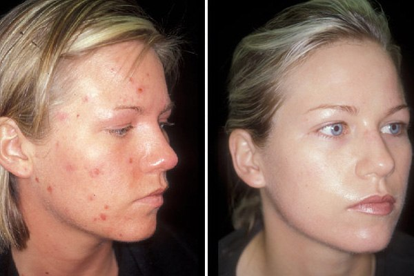 лечение цинковой мазью, фото До и После