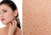 Тест на обезвоженность кожи