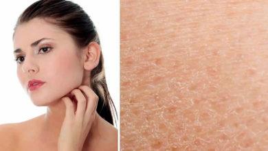 Photo of Тест на обезвоженность кожи