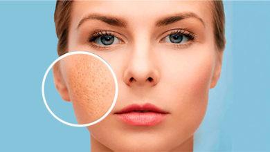 Как уменьшить расширенные поры на лице