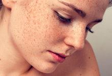 Пигментные пятна на лице, их причины и лечение