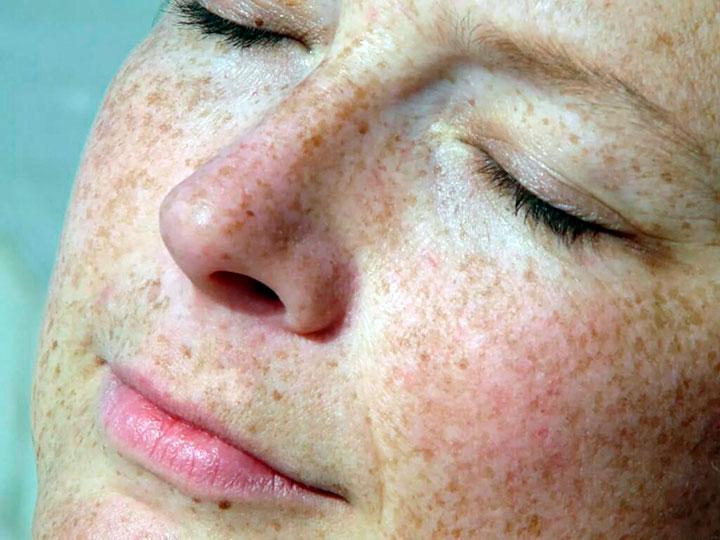 Возрастные пятна на лице: причины, симптомы и лечение